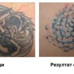 Резултат след 1 сеанс за премахване татуировки с Magic Pen