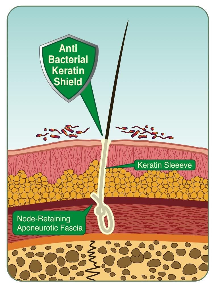 възел на влакно Biofibre във фасцията